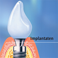 Brochure: implantaten