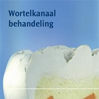 Brochure: wortelkanaalbehandeling